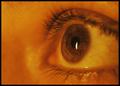 Candle Eye
